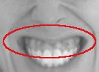 Gummy Smile, Zahfleischlächeln
