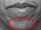 Pflastersteinkinn als Einsatzgebiet von Botox