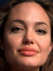 Angelina_Jolie botox