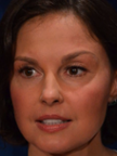 Ashley_Judd_botox