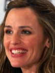 Jennifer Garner Botox