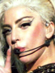 Lady Gaga Botox