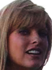 Linda Evangelista Botox