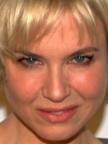 Renée Zellweger Botox