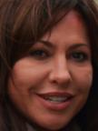 Simone Thomalla Botox