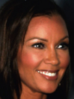 Vanessa Williams Botox