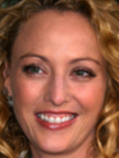 Virginia Madsen Botox