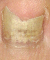 ipl nagelpilz