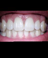 Bleaching, gebleichte zähne, zahnaufhellung