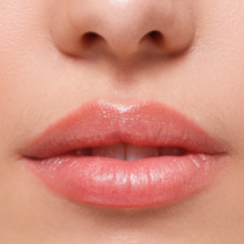 Lippenunterspritzung, Lippenvergrößerung, Hyaluronsäure