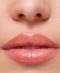 lippenvergrößerung lippenaugmentation lippenaufspritzung