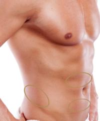 kryolipolyse anwendungsgebiete, behandlungsregionen fettreduktion, kaeltefett