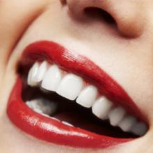 Preis für Bleaching, Zahnaufhellung