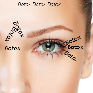 Botox Hannover youthconnection