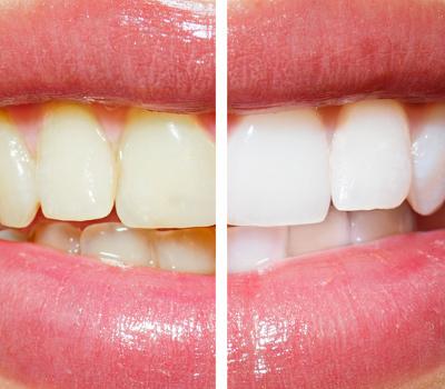Gehören kosmetisches Bleaching und empfindliche Zähne immer zusammen?