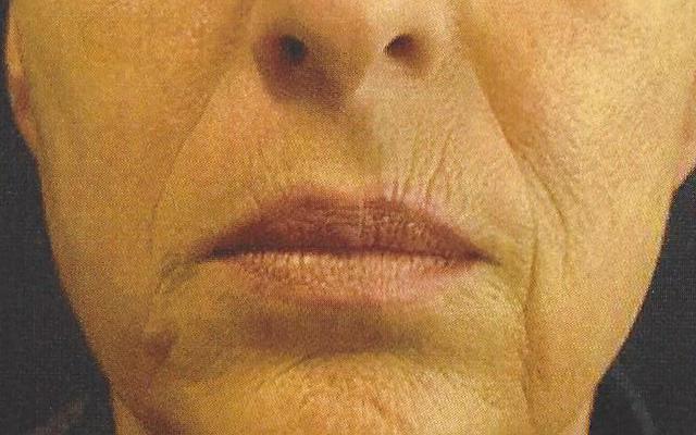 Lippen Botox aufspritzen Vorher-Nachher-Bild