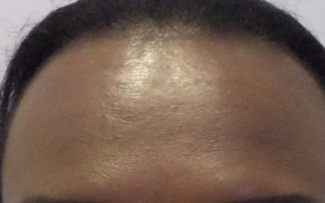 Botox Falten Vorher-Nachher-Bild