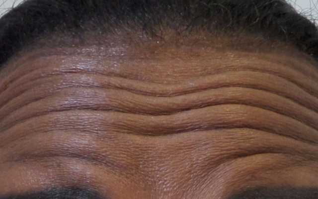 Stirnfalten Botox Vorher-Nachher-Bild