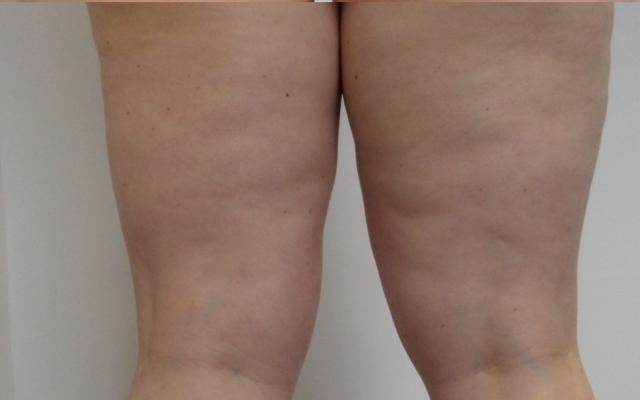 Eissauna Kryosauna Cellulitis Vorher-Nachher-Bild