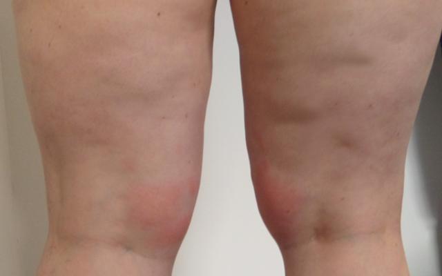 Eissauna Kryosauna Cellulitis Behandlung Vorher-Nachher-Bild