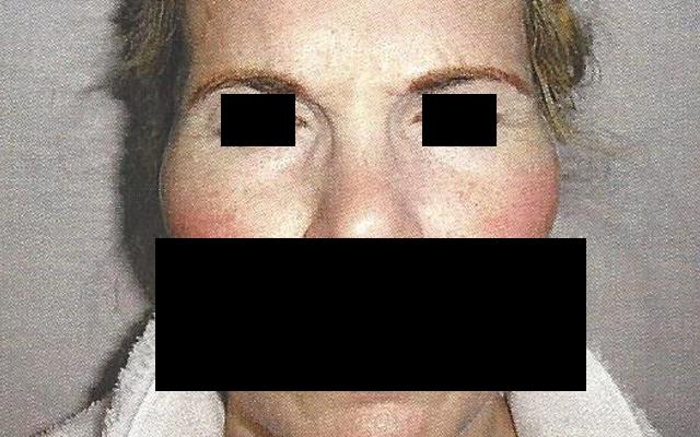Botox Falten Krähenfüße Augenfalten Lachfältchen Vorher-Nachher-Bild