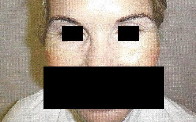 Lachfalten Krähenfüße Botox Vorher-Nachher-Bild