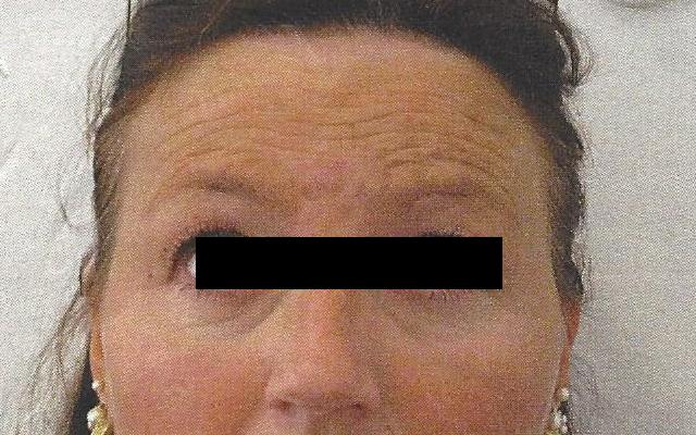 Stirnfalten querfalten Sorgenfalten Botox Vorher-Nachher-Bild