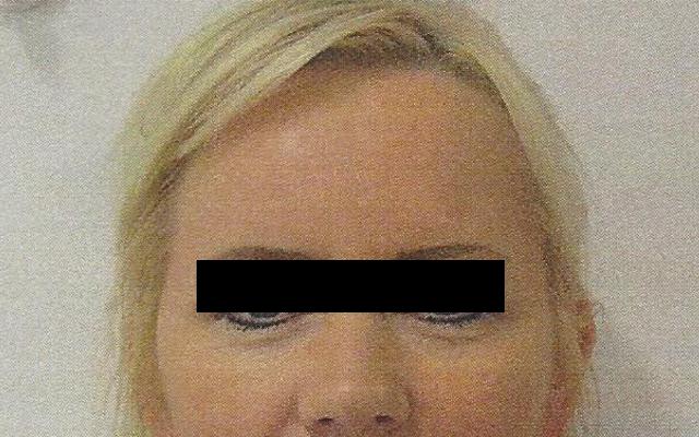 Stirn Botox Sorgenfalten Vorher-Nachher-Bild
