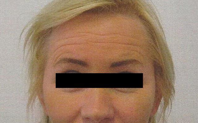 Stirnfalten Sorgenfalten Botox Vorher-Nachher-Bild