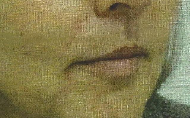 Merkelfalten Nasolabialfalten Marionettenfalten Hyaluron Vorher-Nachher-Bild