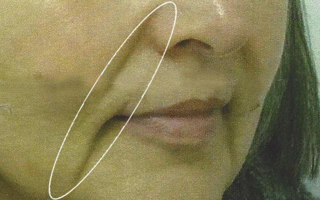 Merkelfalte Marionettenfalte Nasolabialfalte Vorher-Nachher-Bild