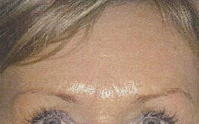 Botox Sorgenfalten Vorher-Nachher-Bild
