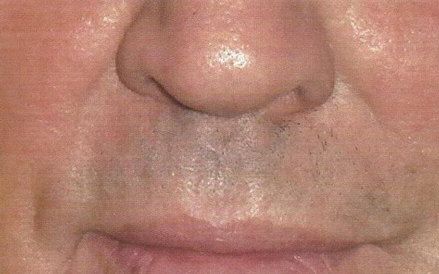 Nasolabialfalte Mann Hyaluron kein Botox Vorher-Nachher-Bild