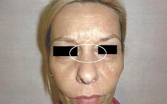 Botox Falten Bunnyfalten Nasenfalten Vorher-Nachher-Bild