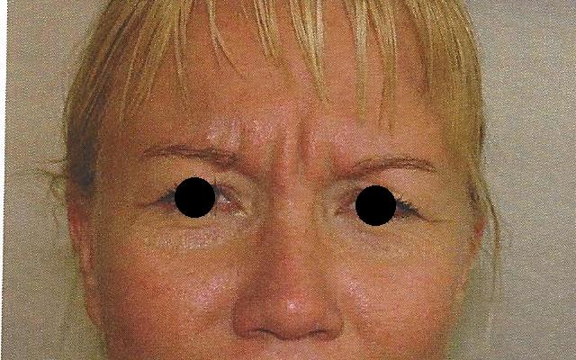Zornesfalte Botox Vorher-Nachher-Bild