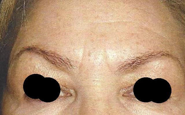 Botox Stirnfalte Zornesfalte Vorher-Nachher-Bild