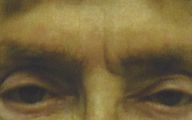 Zornesfalte Hyaluron Botox Vorher-Nachher-Bild