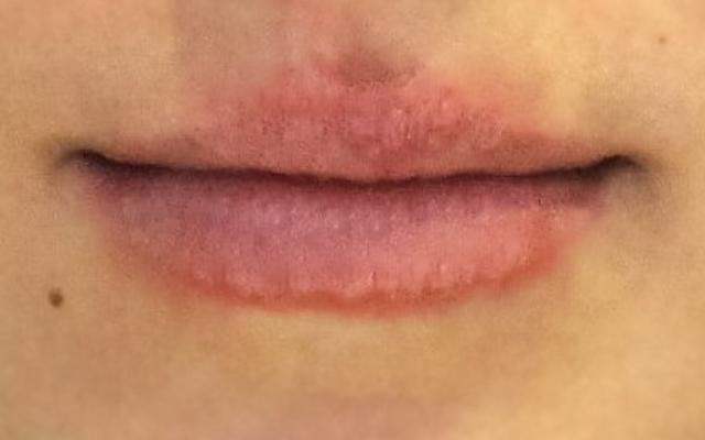 Lippenvergrößerung Hannover Vorher-Nachher-Bild