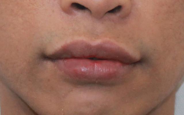 Lippen vergrößern Männer Vorher-Nachher-Bild