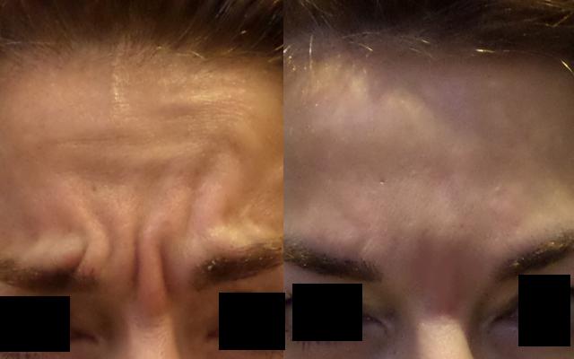 Zornesfalten Botox Vorher-Nachher-Bild