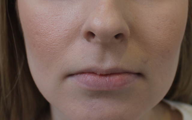 Lippen Hyaluronsäure aufspritzen Vorher-Nachher-Bild