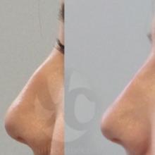 Höcker wegmachen, Nasenkorrektur ohne OP, Nase Hyaluron Filler