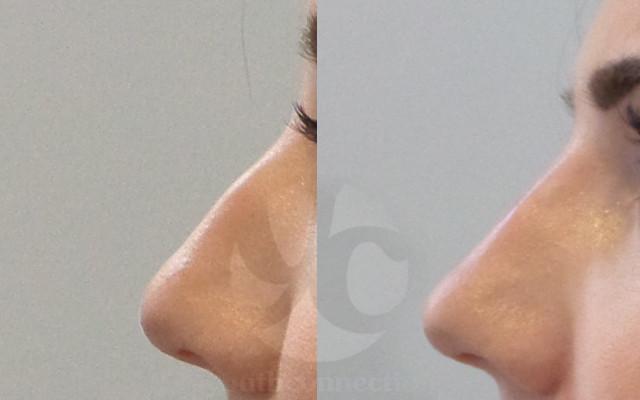 Filler Nase Höcker aufspritzen Vorher-Nachher-Bild