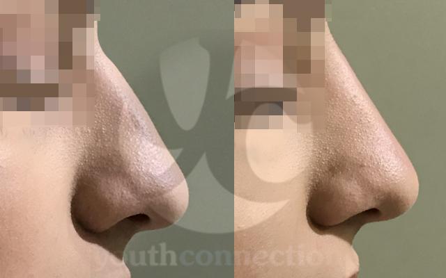 Filler Nase Höcker Juvederm Hyaluronsäure aufspritzen Vorher-Nachher-Bild
