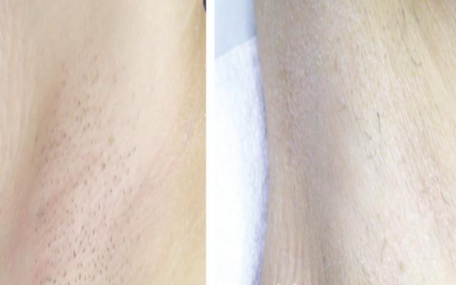 Laser Enthaarung Vorher-Nachher-Bild