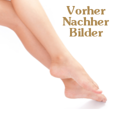 Laser Vorher-Nachher-Bilder, intensed pulsed light, Haarentfernung, Haare entfernen, Wachsing, Epilieren